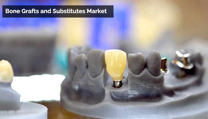 Bone Grafts and Substitutes Market Key Arthrex, Baxter