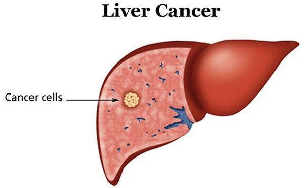 Liver Cancer Diagnostic Market
