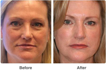 Facial Fat Transfer Market
