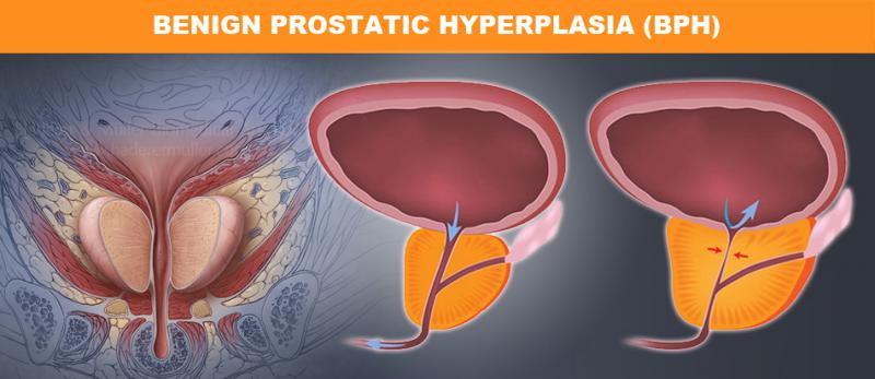 Benign Prostatic Hyperplasia (BPH) Procedures Insights,