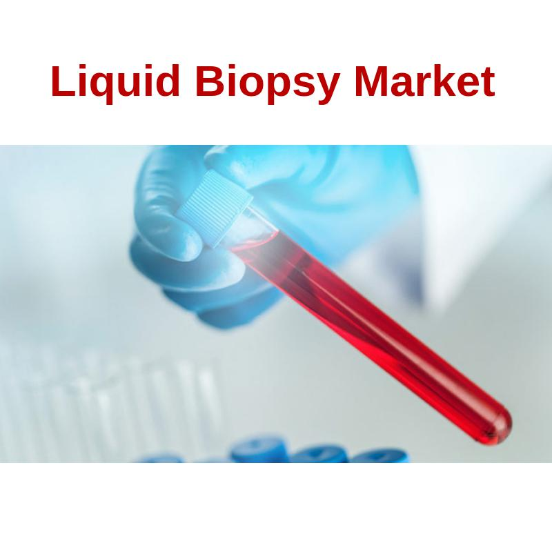 Liquid Biopsy Market 2019 Key Players Profiled By 2026 : Personal