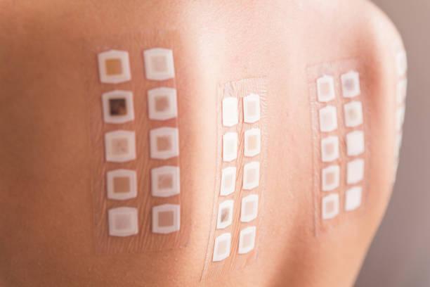 Allergy Skin Test Market