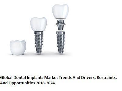 Dental Implants Market