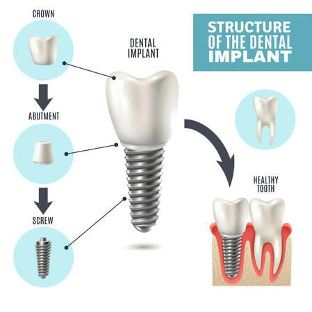 dental implants and prostheses