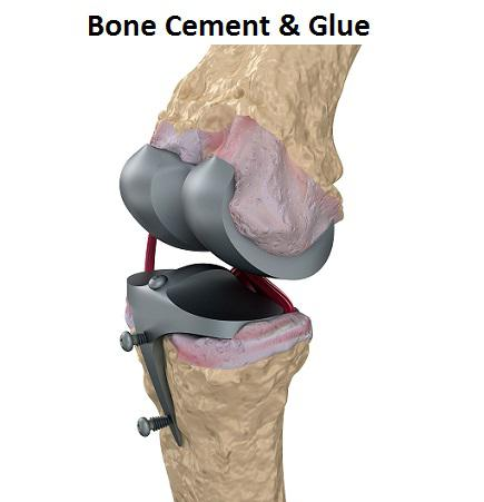 Bone Cement & Glue Market