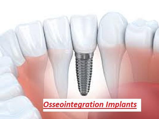 Osseointegration Implants