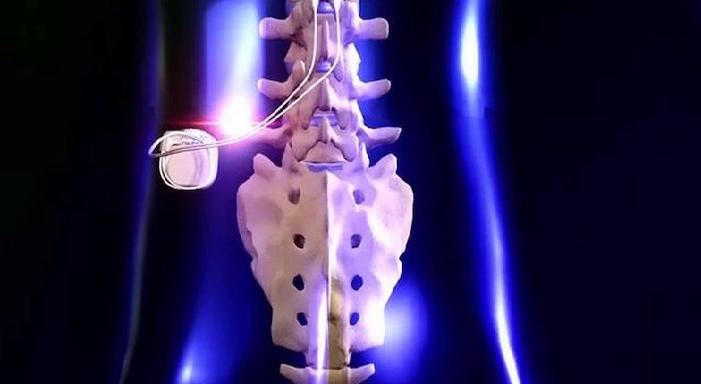 Spinal Electrical Stimulation Devices Market