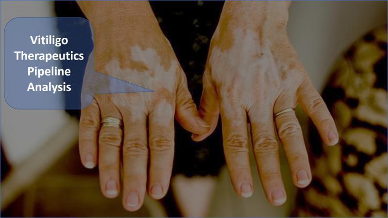 Vitiligo Therapeutics - Pipeline Analysis 2018, Clinical