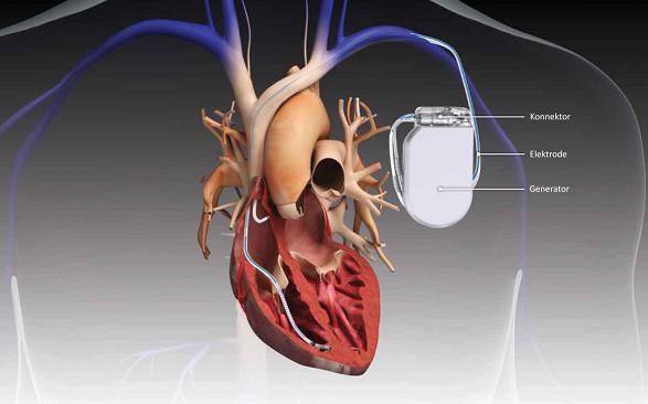 Cardiac Implants