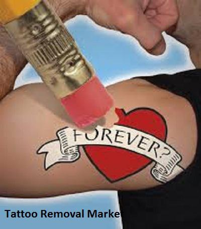 Tattoo Removal Market is growing at a CAGR of 12.7% by 2023   Top 3
