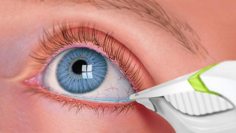 Dry Eye Syndrome Treatment Market