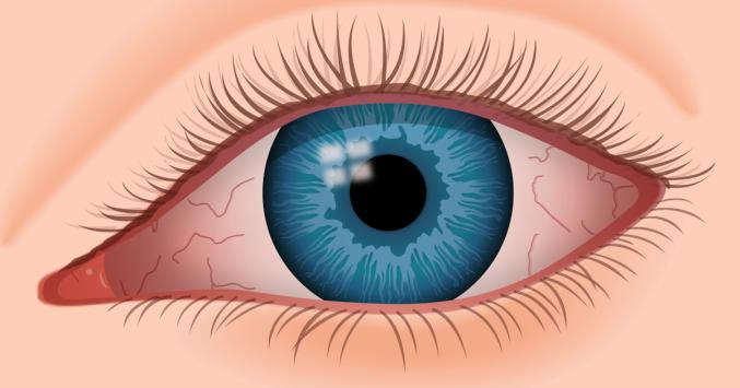 Dry eye syndrome treatment market accounted billions With