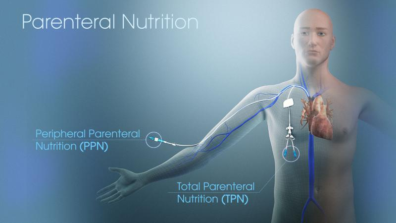 Global Parenteral Nutrition Market ? Industry Trends & Forecast to 2026