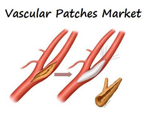 Vascular Patches Market