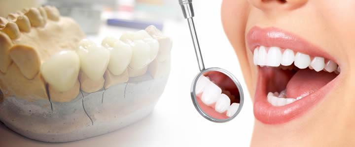 Global Dental Prosthetics Market