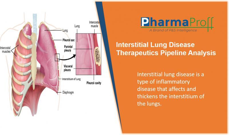 Interstitial Lung Disease Therapeutics - Pipeline Analysis