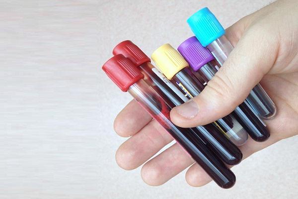 Venous Blood Test Tubes