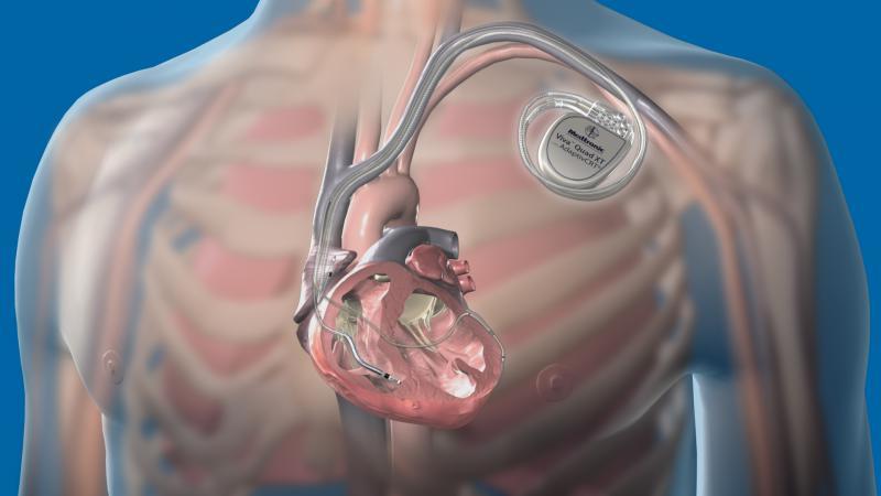 Cardioverter Defibrillator Devices Market Upcoming Trends,