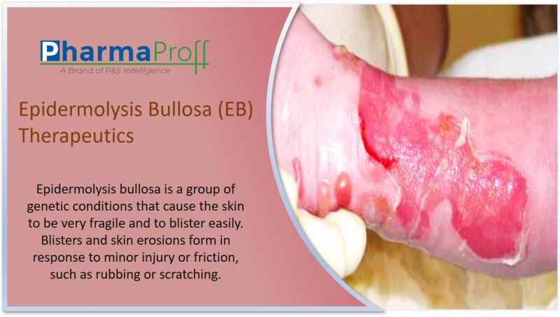 Epidermolysis Bullosa (EB) Therapeutics- Pipeline Analysis