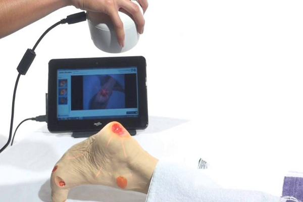 Surgical Dental Loupes and Cameras Market