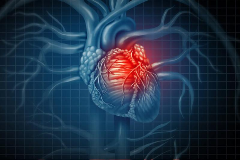 Global Acute Coronary Syndrome Market