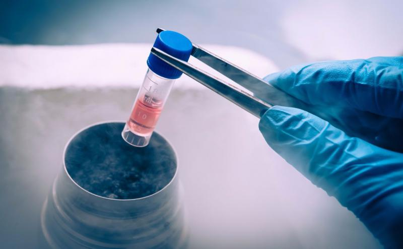 Global Tissue Banking Market, Top key players are Thermo Fisher
