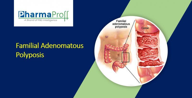 Familial Adenomatous Polyposis (FAP) Therapeutics- Pipeline