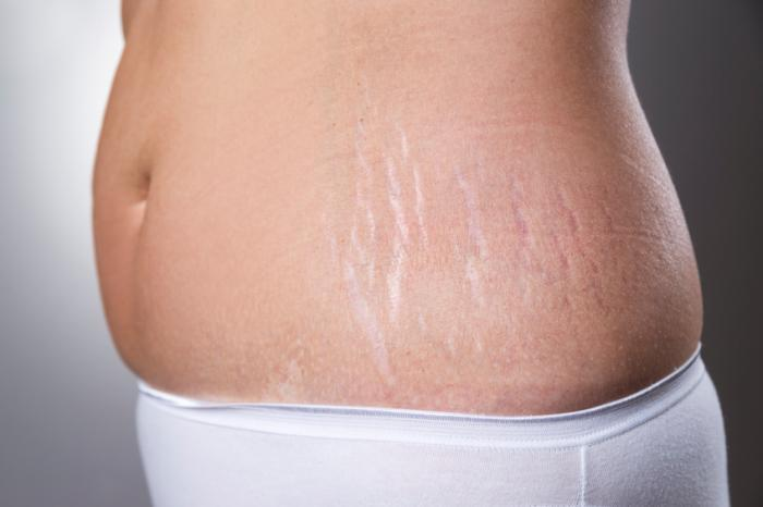 Stretch Marks Treatment Market