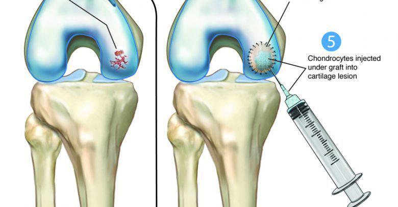 Knee Cartilage Repair