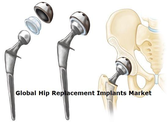 Global Hip Replacement Implants Market