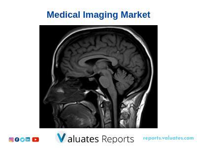 Global Medical Imaging Market Analysis, Industry Trends,