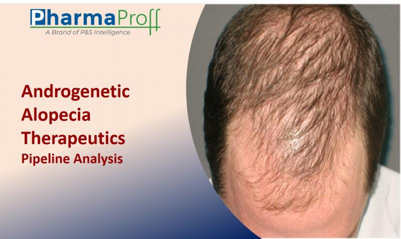 Androgenetic Alopecia Therapeutics Pipeline to Witness