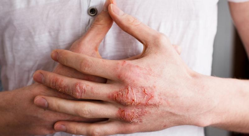 Global Atopic Dermatitis Treatment Market