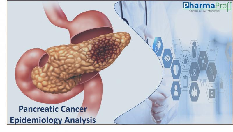 Pancreatic Cancer Epidemiology Analysis by Stage, Sex & Age