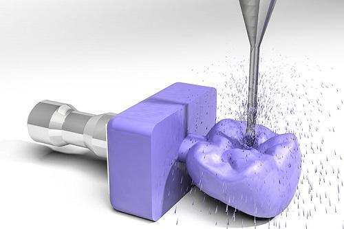 Dental CAD/CAM Materials & Systems Market