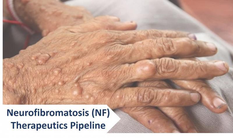 Neurofibromatosis (NF) Therapeutics Pipeline