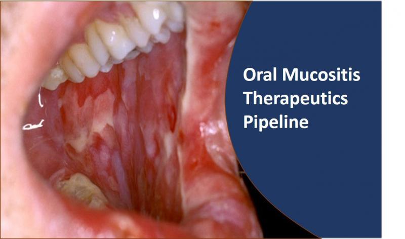 Oral Mucositis Therapeutics Pipeline