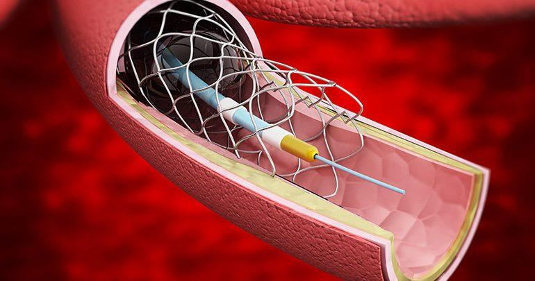 Non-vascular Stents Market 2018 | Industry Analysis by Top