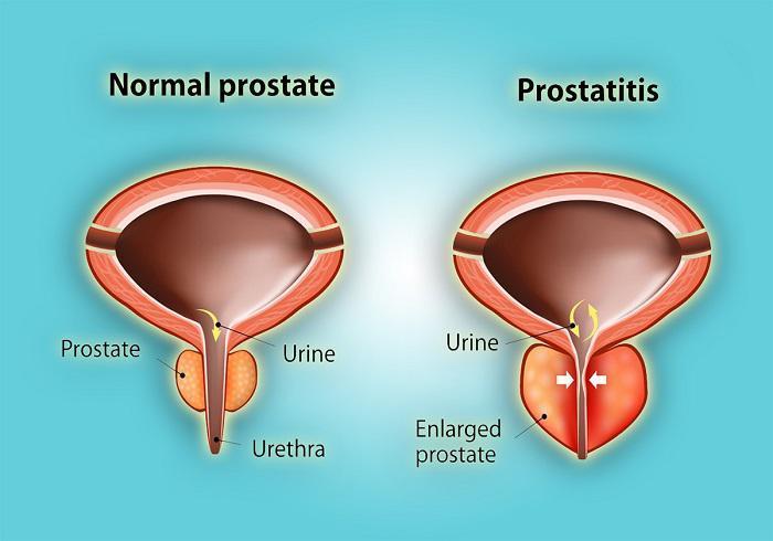 Prostatitis Therapeutics Pipeline Analysis -Pharma Proff