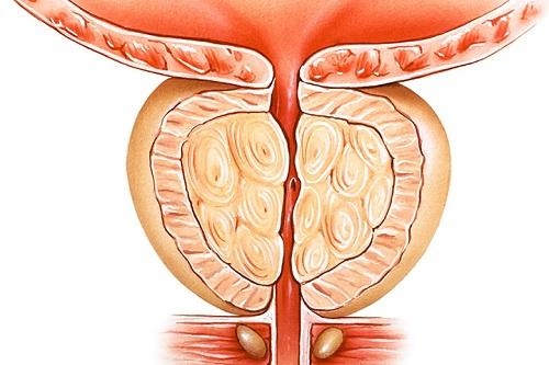 Benign Prostatic Hyperplasia Therapeutics Market