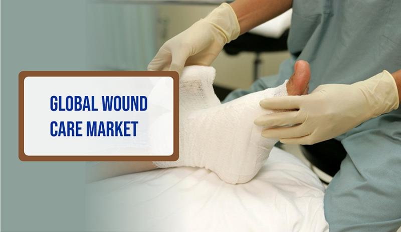 What's driving the Wound Care Market Share? | Key Players