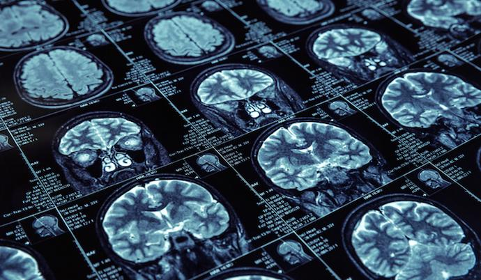 Global AI Medical Imaging Market 2026 | Industry Outlook With