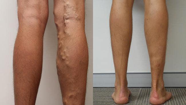 beneficiile squats în varicoză varicoză în cauzele de vârstă fragedă