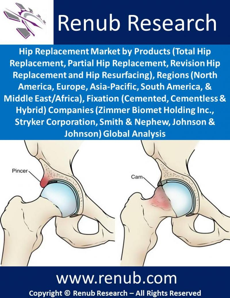 hip-replacement-market-size