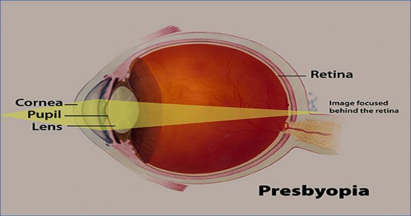 Novel Drug Delivery Systems to Augment Presbyopia Therapeutics