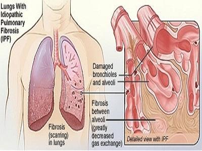 Idiopathic Pulmonary Fibrosis (IPF) Market Insights Research Report