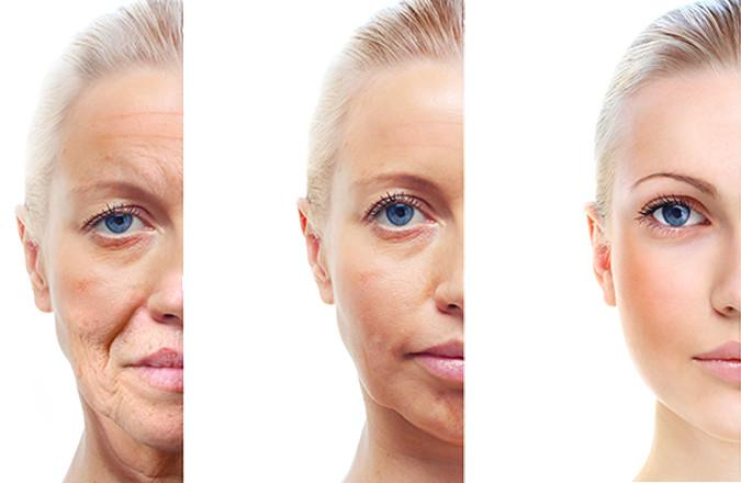 Global Anti-Aging Cosmetics Market, Top key players are Loreal