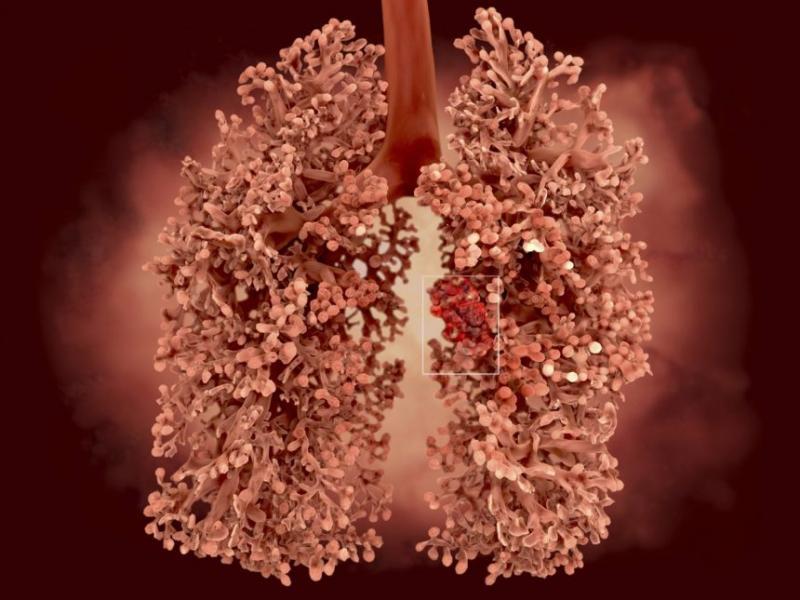 Lung Cancer Screening Software Market