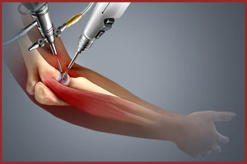 Elbow Replacement Market to Witness Robust Expansion by 2024