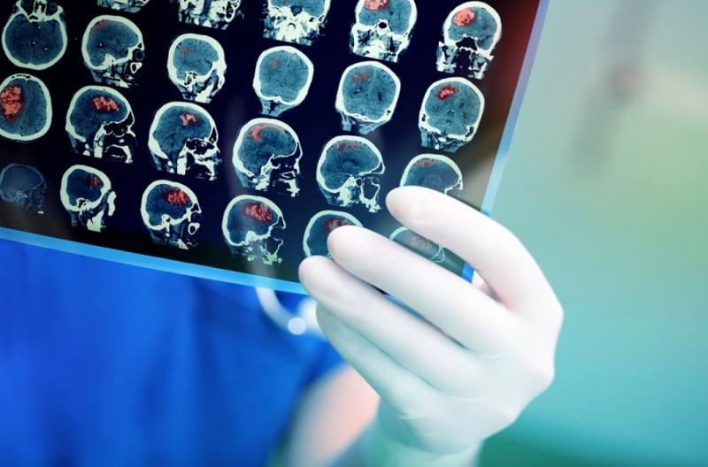 Medical Imaging Equipment Services Market To Witness Highest